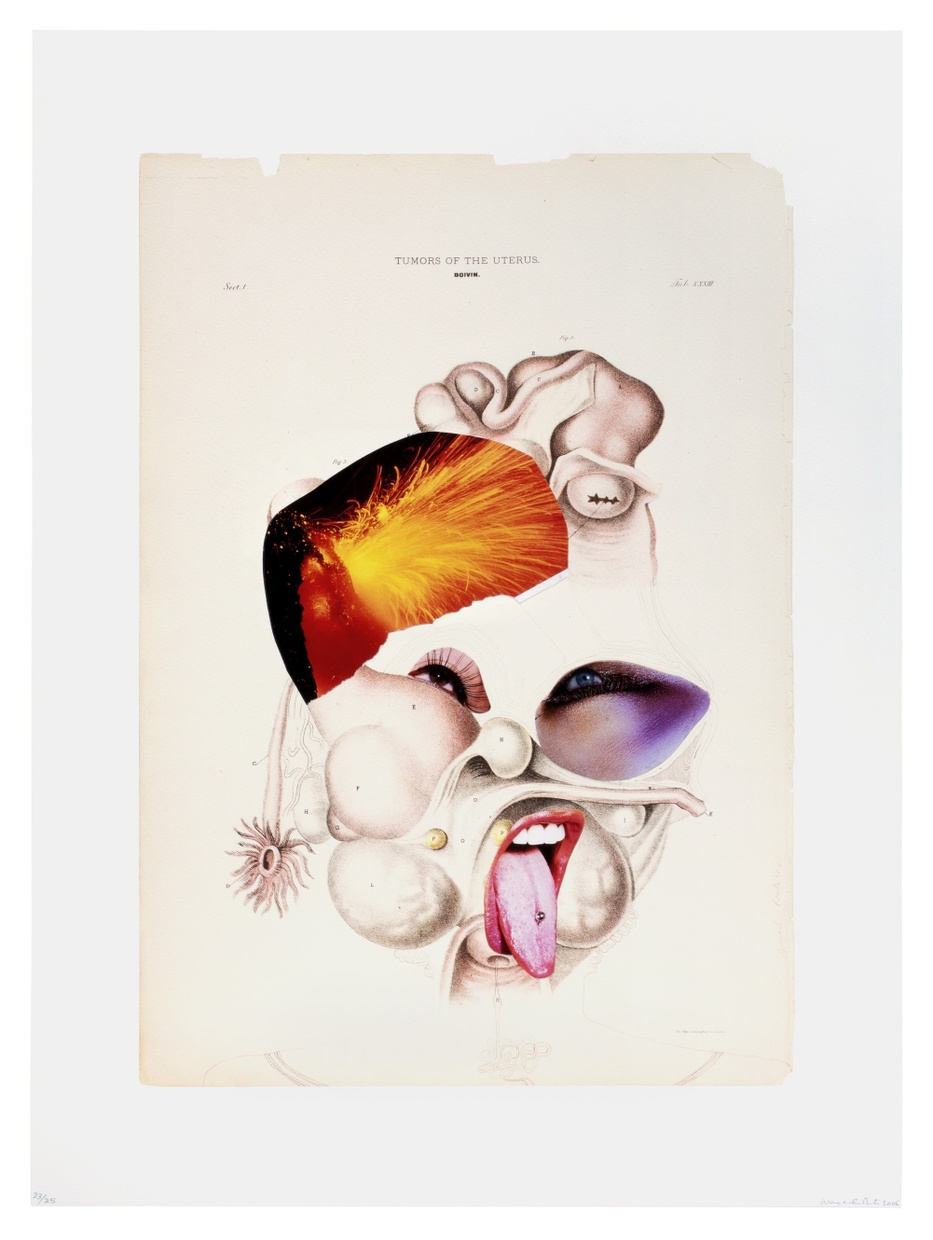 A collage of two eyes, an open mouth with a tongue out, and an exploding volcano cut out from magazines on an old scientific drawing of uterine tumors.