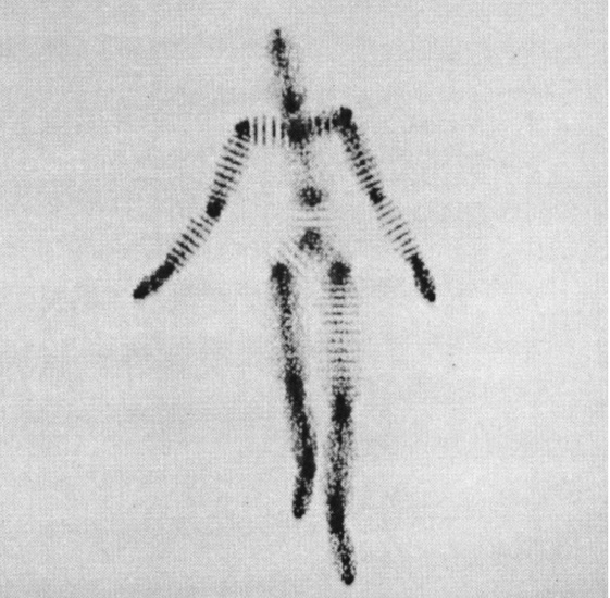 """""""The 'Cloud person' with one random variable,"""" 1983. Published in Delle Rae Maxwell, """"Graphical Marionette: A Modern-Day Pinocchio"""" (master's thesis, MIT, 1983)."""