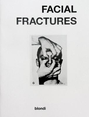 Facial Fractures