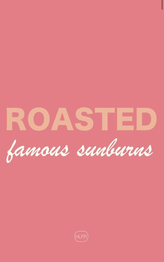 Roasted: Famous Sunburns